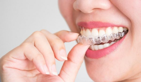 What-are-invisalign-attachments
